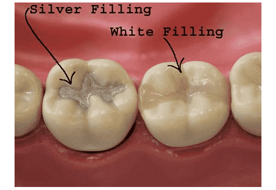 Dental Fillings Appointment Procedure