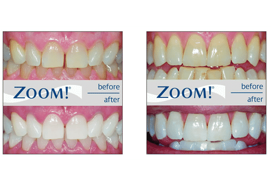 So what actually happens during an appointment for Zoom in-chair teeth whitening?