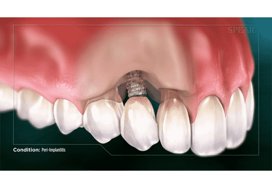 What Is Peri Implantitis?