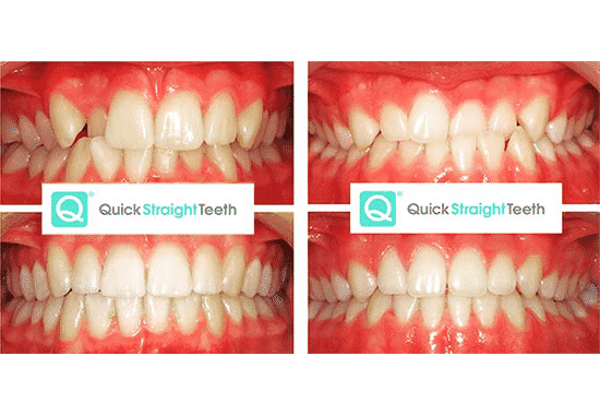 Quick Straight Teeth Procedure