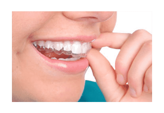 Straighten Your Teeth With ClearPath
