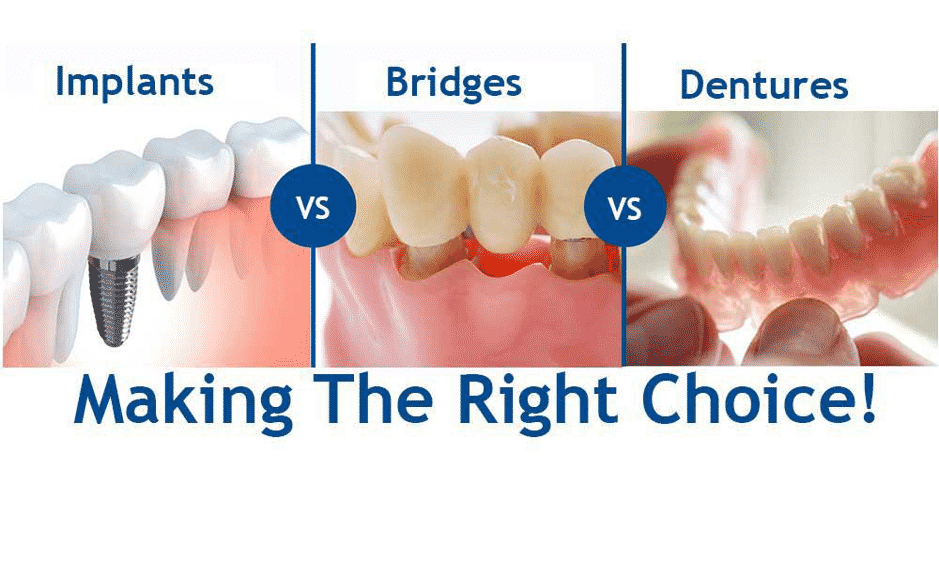 Are dental implants a cost-effective treatment option?